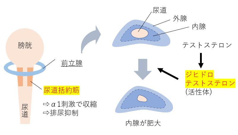 前立腺肥大症 原因 病態