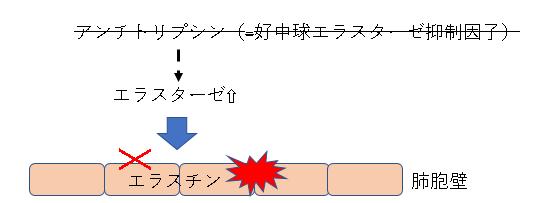 α₁アンチトリプシン欠損症