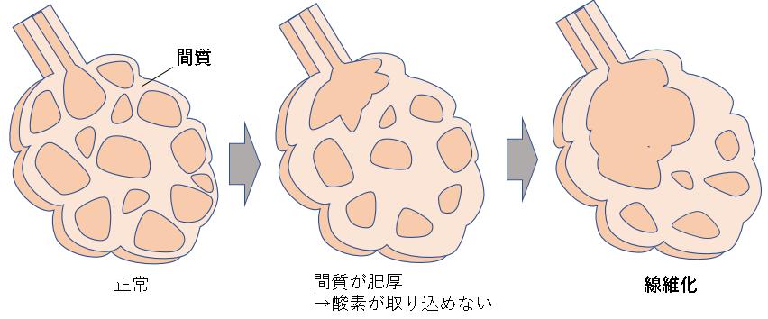 間質性肺炎の病態 順序